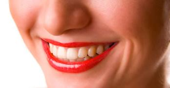 Sorriso depois do dentista